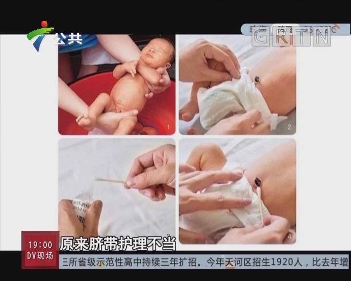 [2018-05-31]生活计仔多:新生儿脐带护理不当 随时会引起感染的