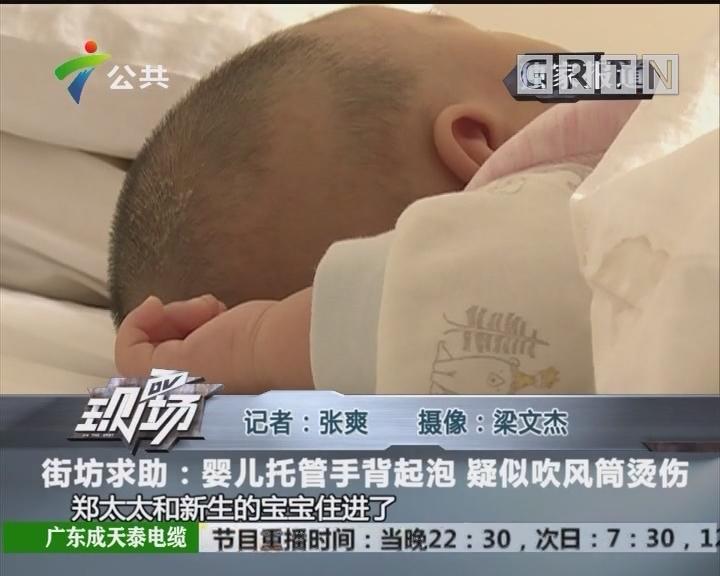 街坊求助:婴儿托管手背气泡 疑似吹风筒烫伤