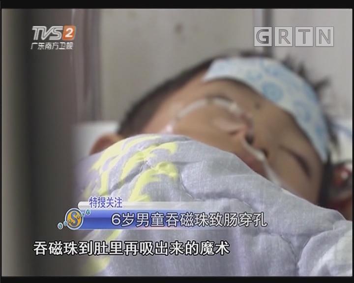 6岁男童吞磁珠致肠穿孔