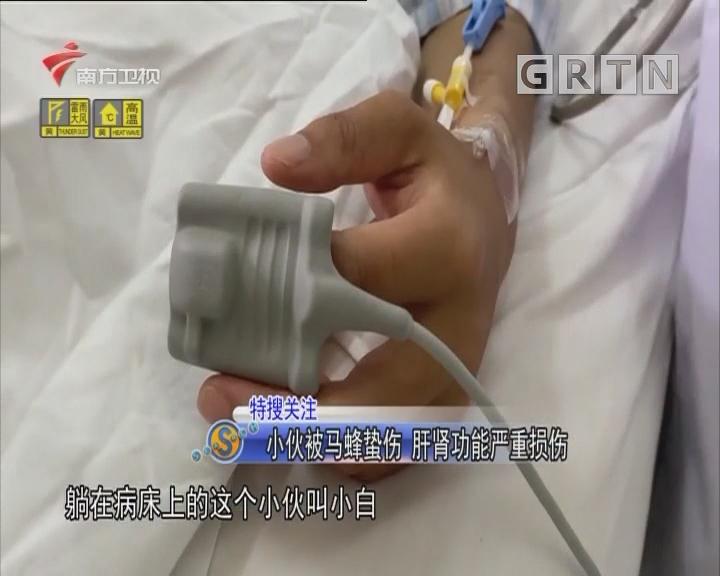 小伙被马蜂蛰伤 肝肾功能严重损伤