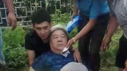 刘金山已苏醒不至于坐轮椅 家人:差点没了