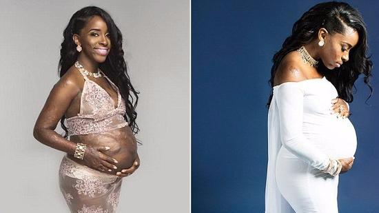 她全身85%烧伤被告知无法足月,晒怀孕照回击医生
