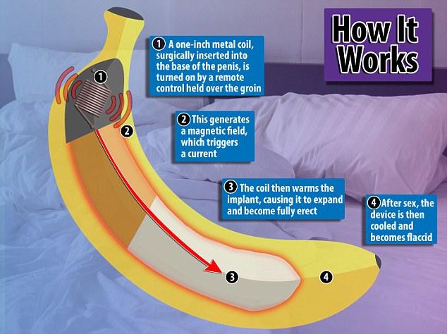 科学家创造出仿生阴茎 长度可达20厘米