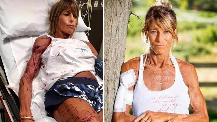 澳洲女子慢跑遭巨型袋鼠袭击 竟装死躲过一劫