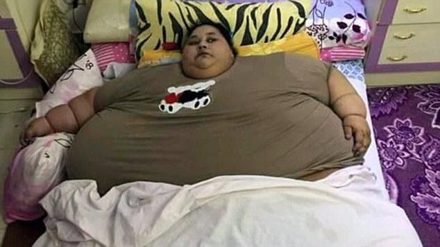 世界最胖女子5天减掉60斤 曾被起重机运出卧室