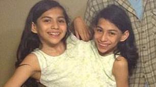美连体双胞胎姐妹或将手术分离 面临分开生活挑战