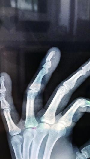 专业碰瓷团队分工明确 为了讹人竟用铁锤自断手指