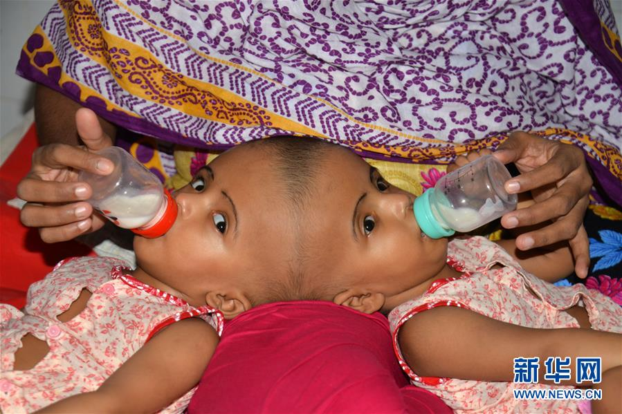 孟加拉国头部连体女婴将准备接受分离手术