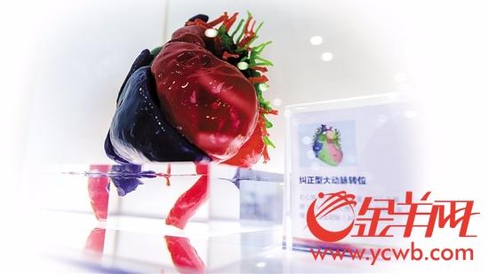 神奇!医生3D打印一颗心 救回2岁宝宝一条命