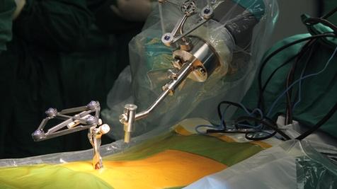 机器人独立做手术可比外科医生更精确