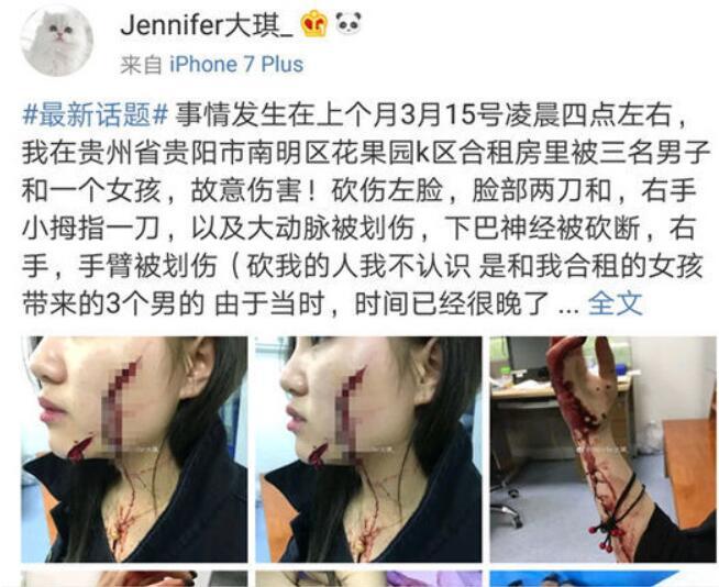 女孩被砍报警1个月无进展 发帖1天砍人者全数到案