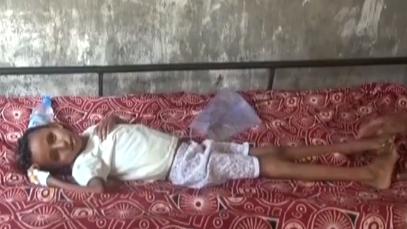 """战火摧残也门:饥荒""""杀""""人 触目惊心"""