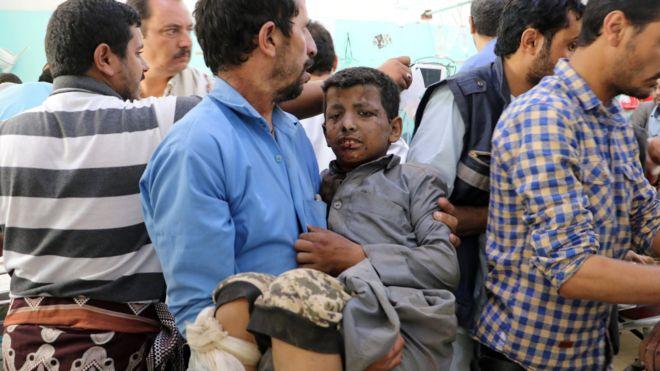 沙特联军空袭也门击中一辆大巴 致29名儿童死亡