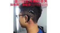 """寻""""天价""""耳蜗事件刷屏 家属回应否认炒作"""