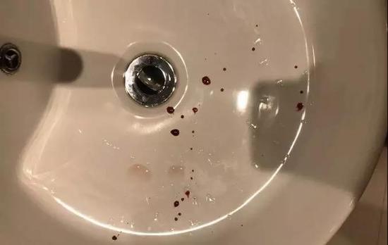 小伙酒店洗浴后滑倒摔伤 酒店:自己打120去医院