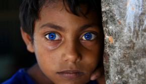 """孟加拉男孩长有如同""""异鬼""""一样蓝色瞳孔"""
