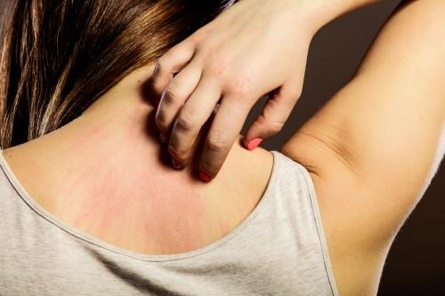 小满时节 皮肤病要早预防